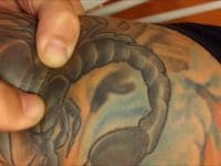 Causes of Tattoo Pimples