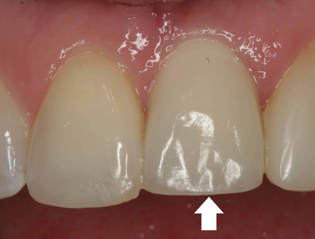 Dental Implants are Increasingly Becoming Popular